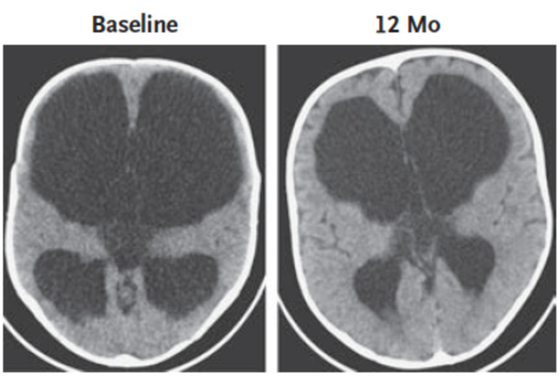 Two scans of an infant's brain appear side-by-side. One is labeled 'Baseline,' the other '12 Months.'