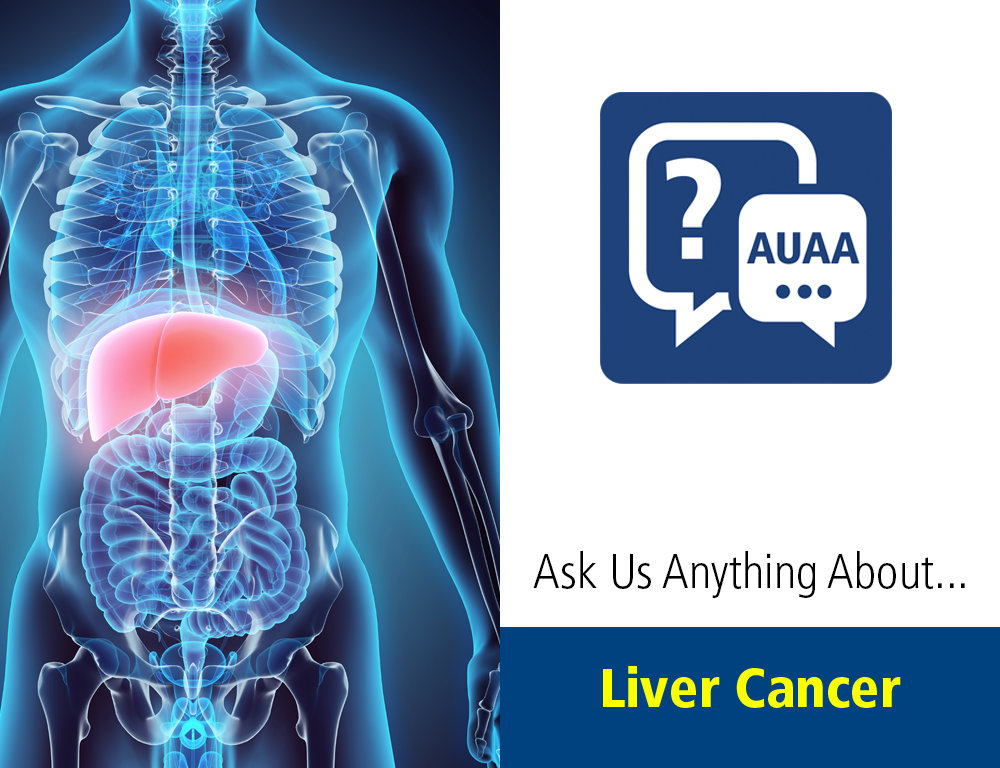 Ask Us Anything About¦ Liver Cancer
