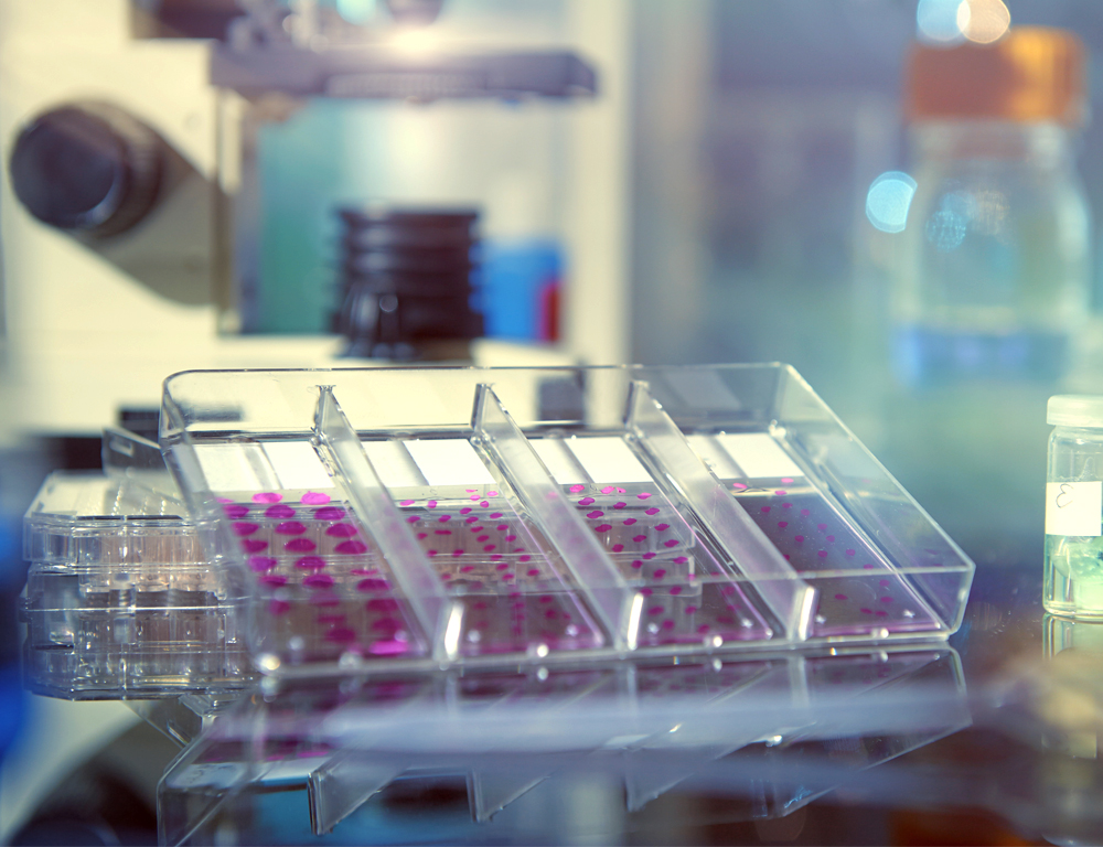 A culture dish with four channels is tilted up slightly facing the camera. Each channel has several purple dots in it. Various lab equipment is in the background.