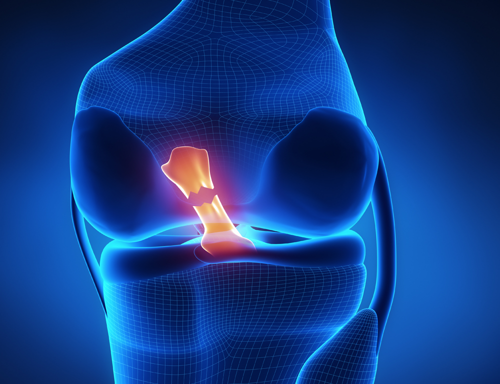 A close-up depiction of a scan of a knee joint, with the anterior cruciate ligament (ACL) highlighted.