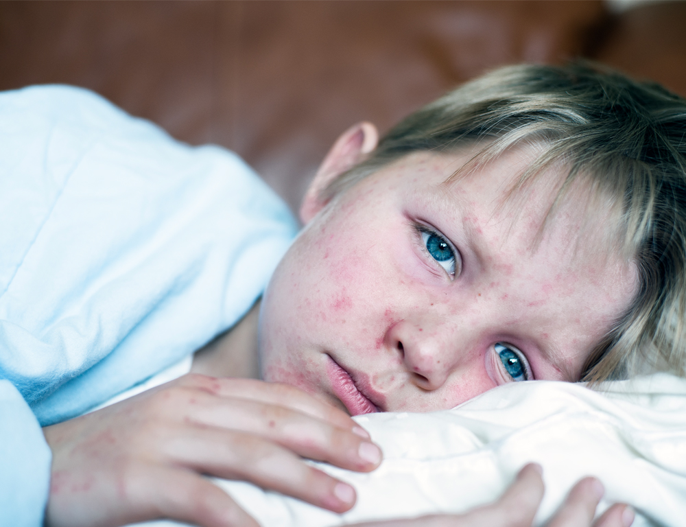 A close-up of a young child with their head on a pillow. Eyes are open, looking toward the camera. The face has a rash that appears to be measles.