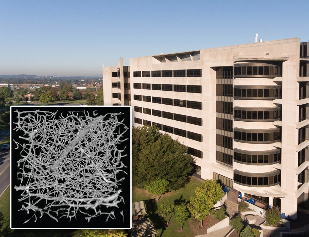 A scan of blood vessels in the brain is superimposed over the lower left-hand corner of an aerial photograph of the Penn State College of Medicine building.