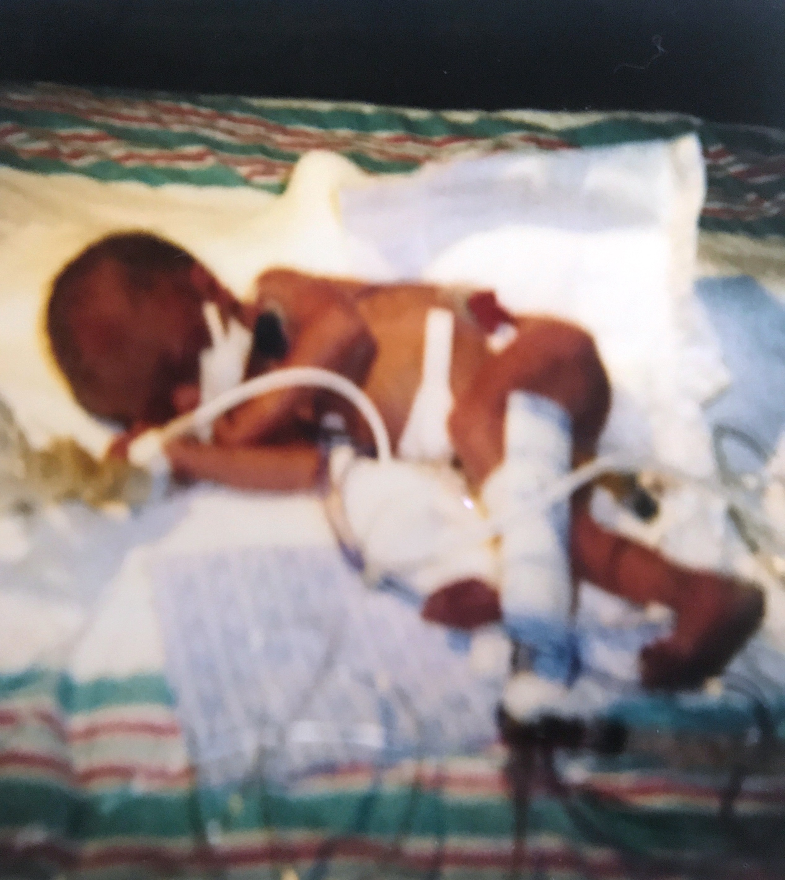 A premature baby lies on a blanket in a NICU incubator with multiple tubes coming out of her body.