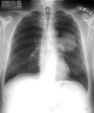 The image shows a chest X-ray. The dark areas are in the shape of lungs. In white, the patient's backbone and collarbone are visible, along with near-transparent white outlines of the ribs. In the lung on the right, there is a cloudy circle representing a mass in the lungs.