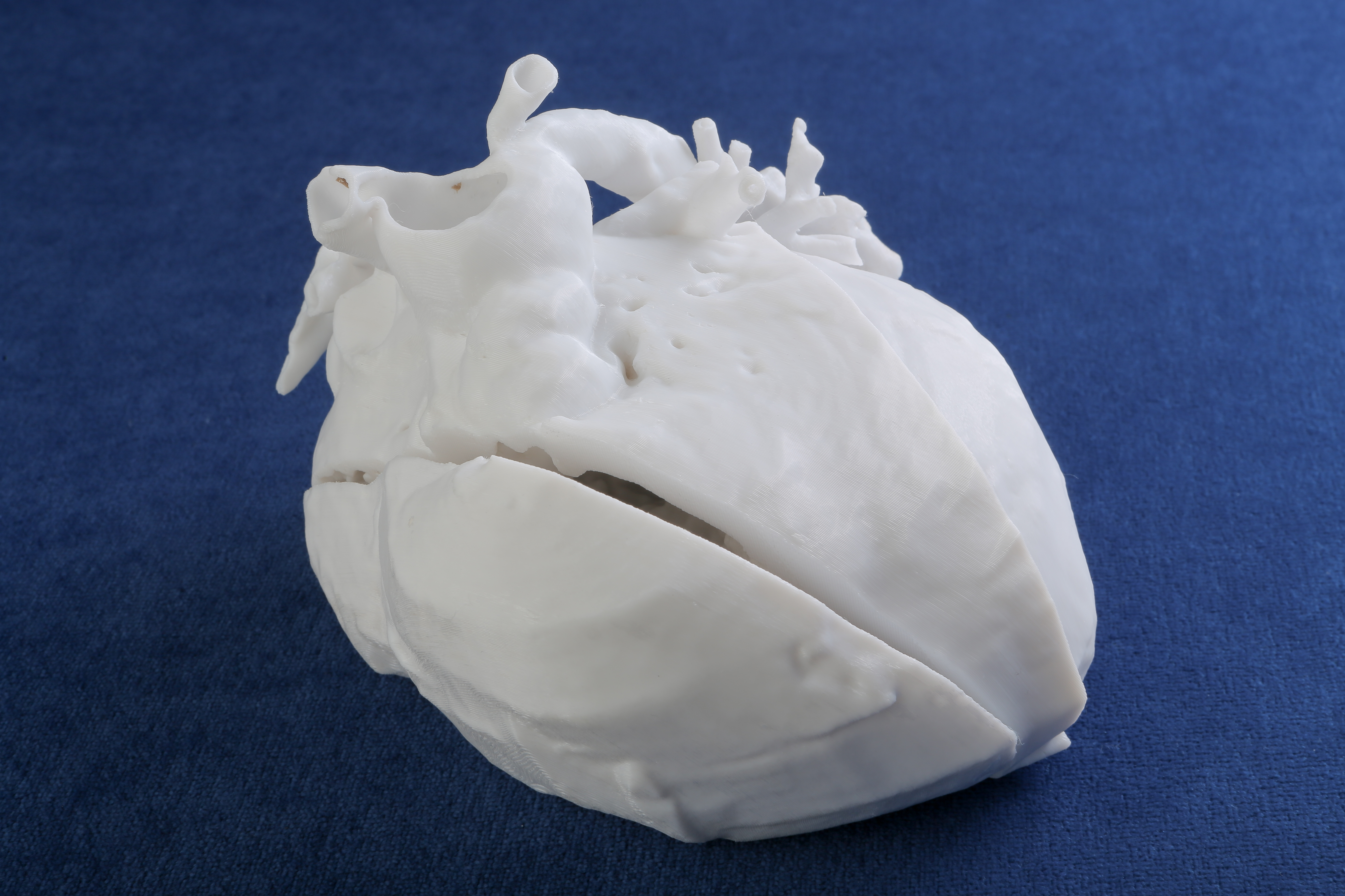 A close-up of a 3D plastic model of a heart shows blood vessels and the heart chambers.