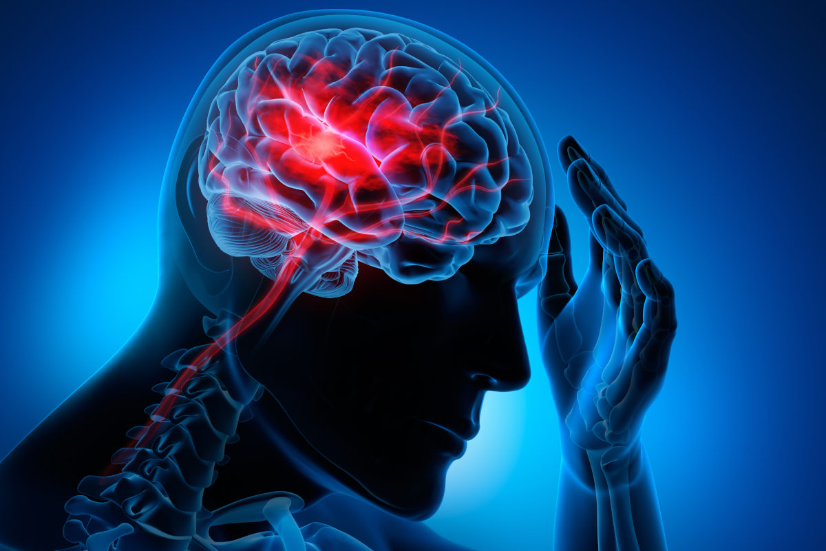 The Medical Minute: Prevent a stroke by knowing your risks - Penn State Health News